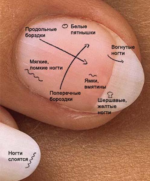Болезни ногтей с